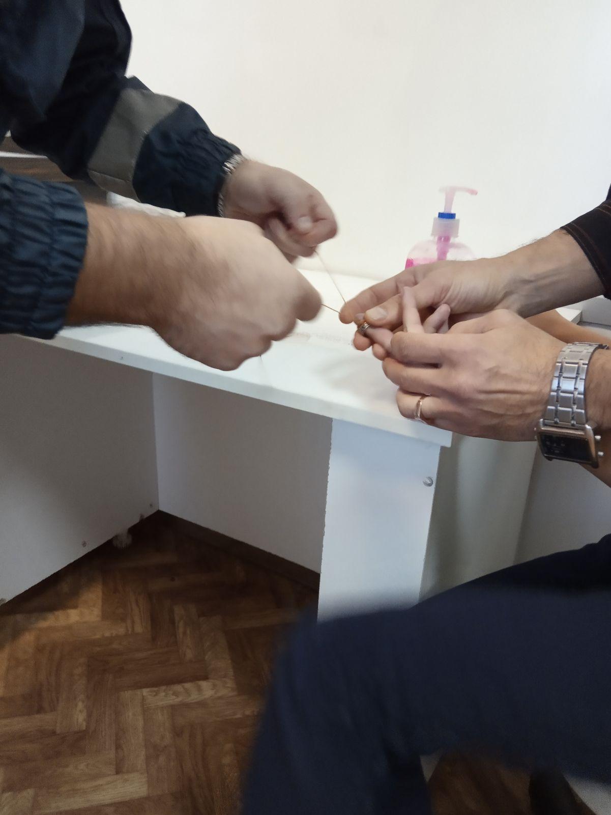 В Ярославле мальчик стал «заложником» кольца: спасатели помогли ребенку снять украшение